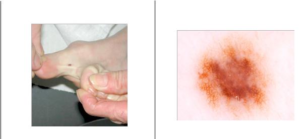 dermakoskopicke-vysetreni-dermacentrum-praha